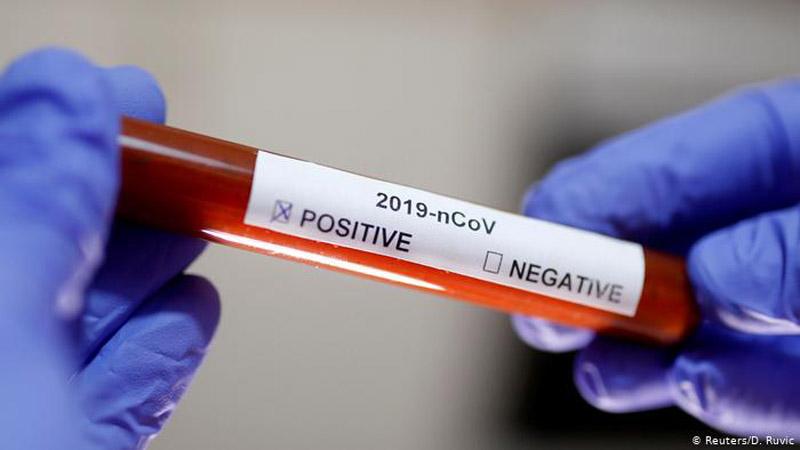 Де на Херсонщині можна буде здати експрес-тести на короновірус